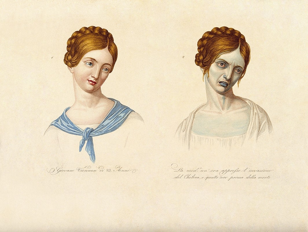 A Viennese woman depicted during the latter stages of choler