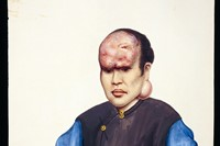 Forehead tumour in gouache by the 	painter, Lam Qua