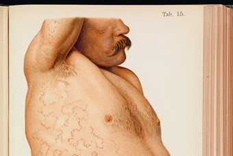 A male patient with erythema covering his abdomen and armpit