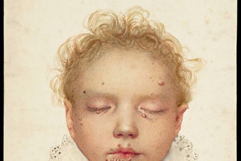 The head of a child with blisters and other lesions affectin