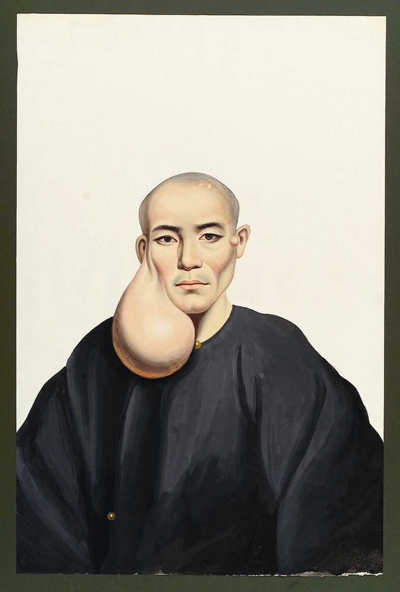 A man with a large pendent face tumour in gouache by the pai